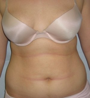 Manhattan liposuction before 1